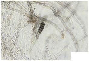 Thielaviopsis basiloca 5681
